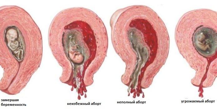 Главная причина выкидыша или замершей беременности. почему замирает беременность