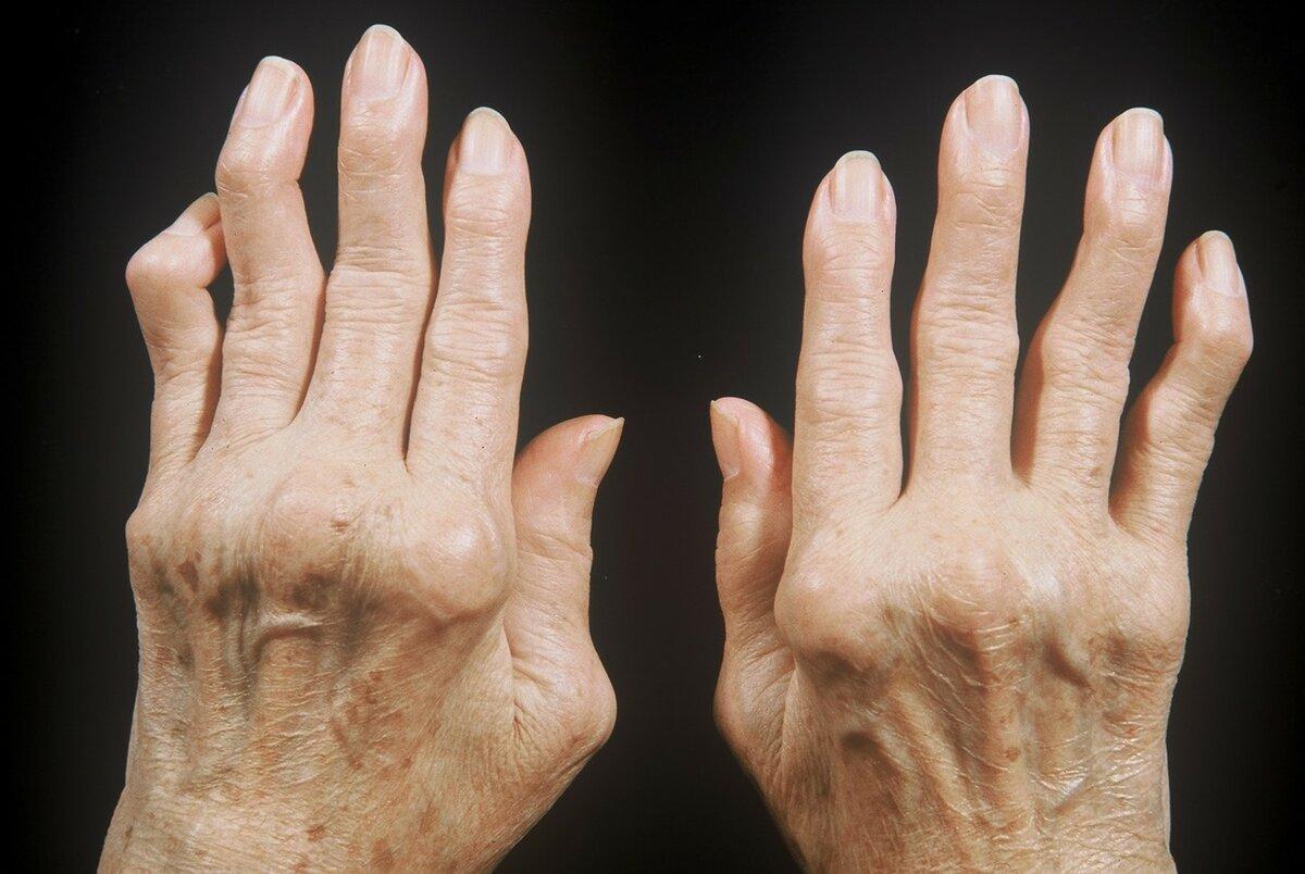 Полиартрит: симптомы и лечение, что это такое, причины, диагностика