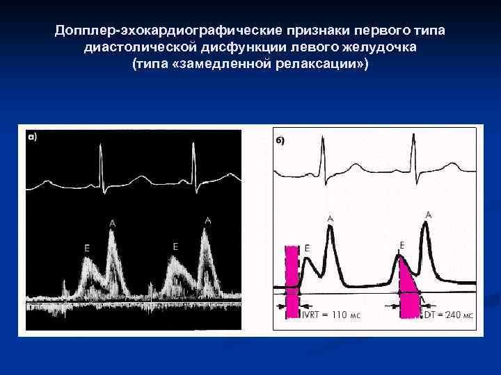 Что такое диастолическая дисфункция левого желудочка 1 типа? — заболевания сердца