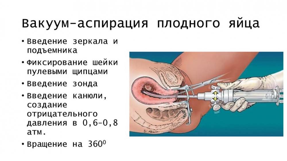 Аспирация: синдром мендельсона, аспирационные пневмонит и пневмония, симптомы, диагностика, лечение | журнал медицинских статей «молодой врач»
