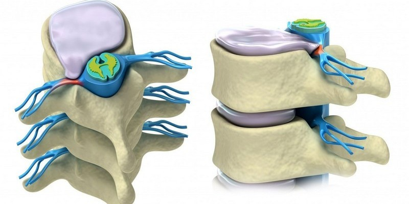 Протрузия межпозвоночных дисков: симптомы и лечение