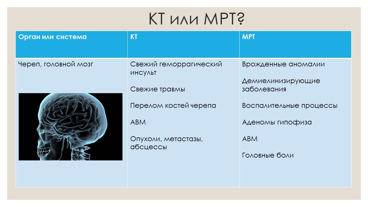 Компьютерная томография что это такое, кт диагностика в медицине