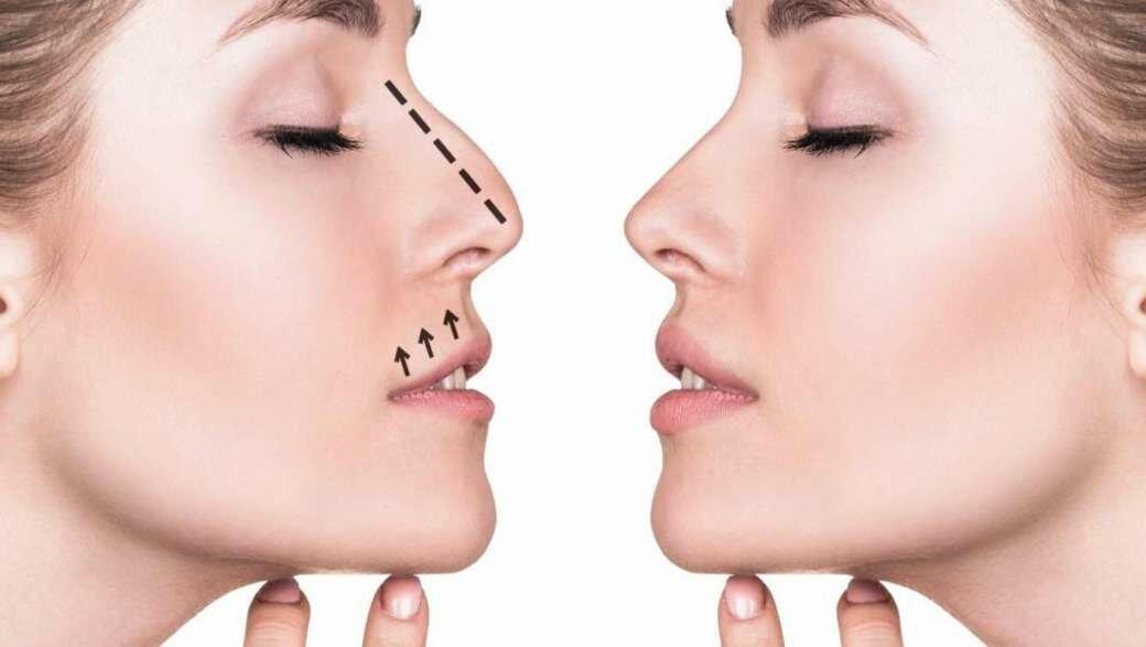 Ринопластика носа — последствия