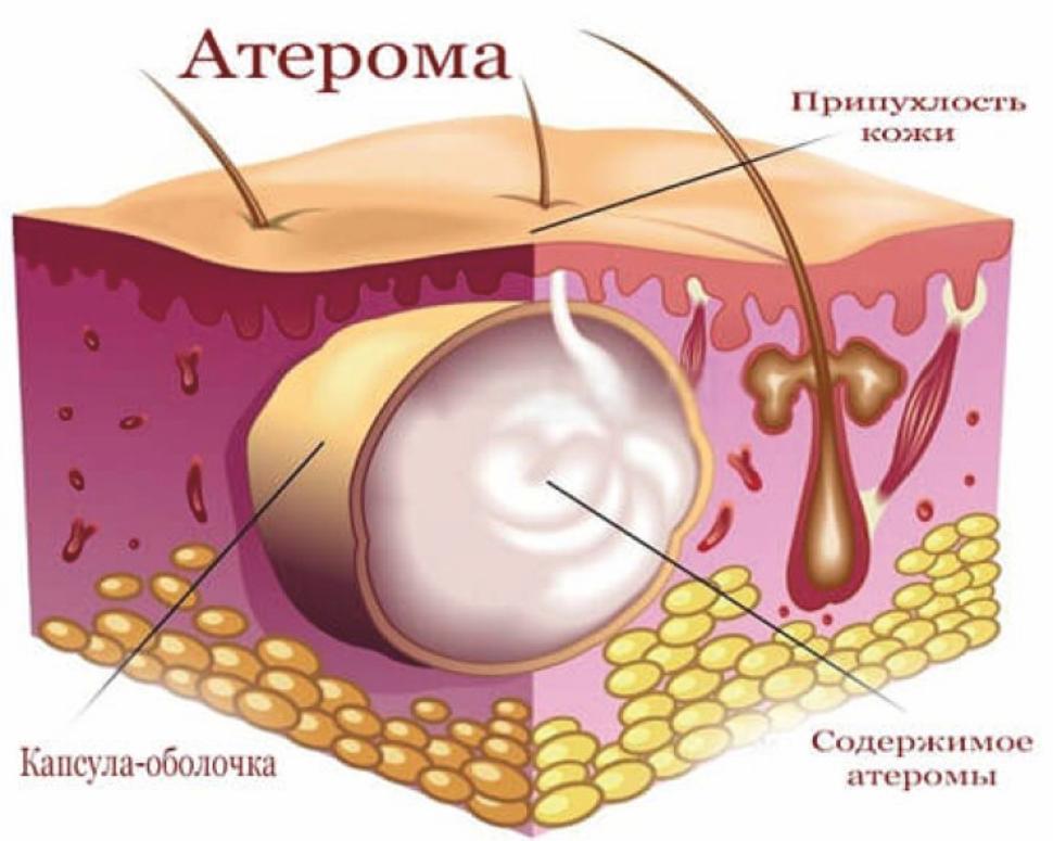 Что такое атерома? все ее виды на фото, причины и лечение