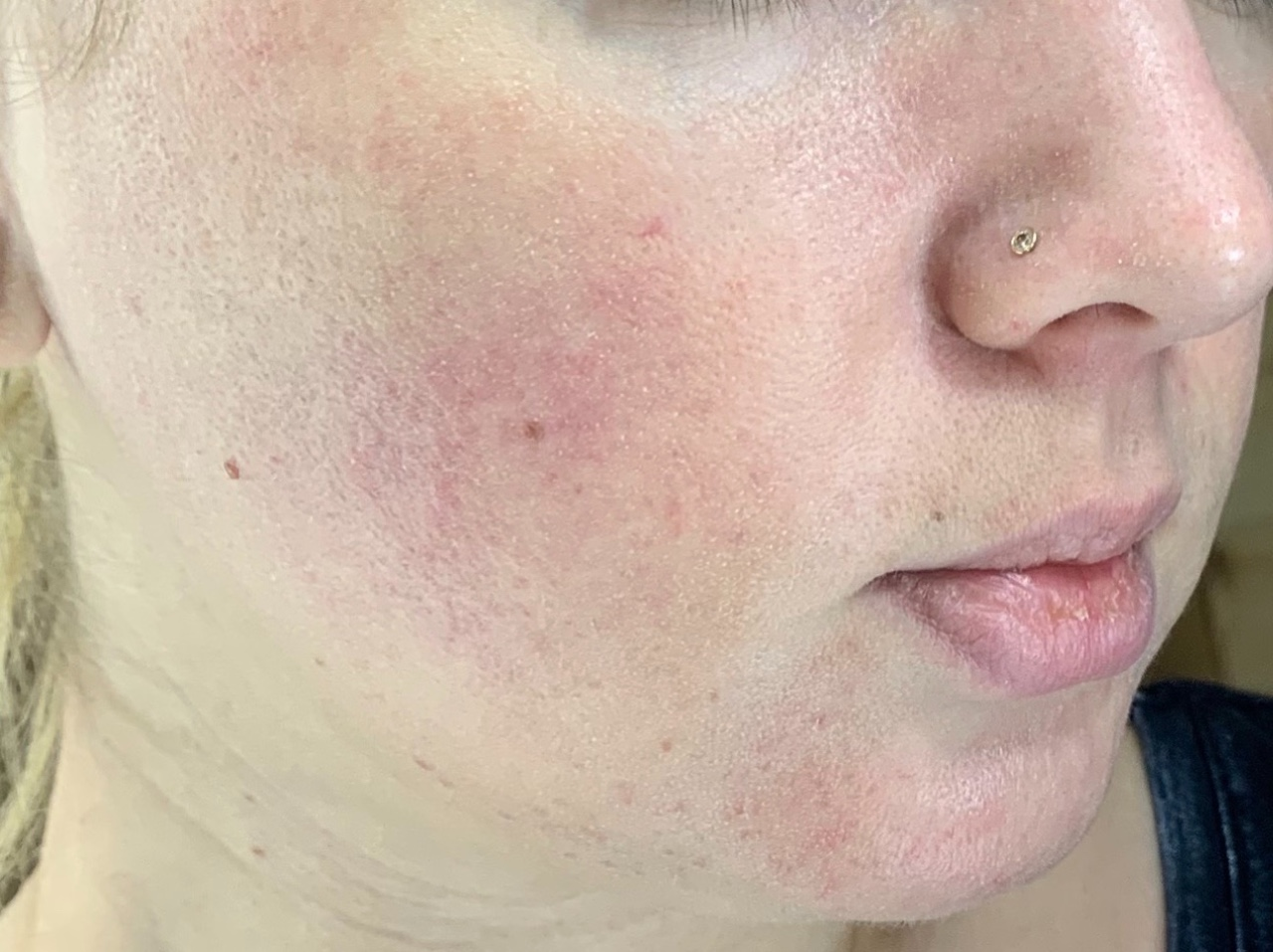 Розацеа на лице: симптомы, фото, лечение. как лечить розацеа