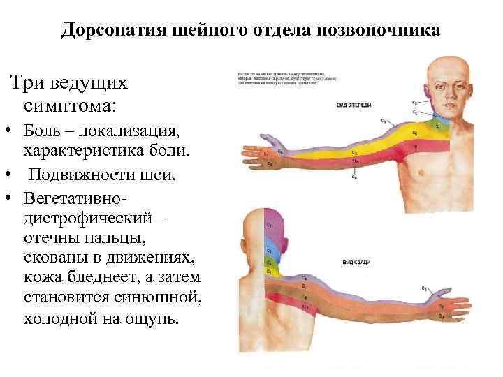 Дорсопатия шейного отдела позвоночника: что это такое и как лечить