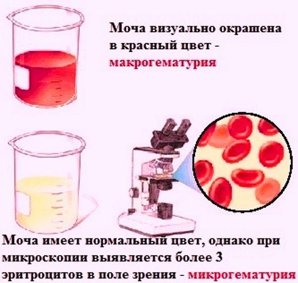 Гематурия у женщин симптомы и лечение | целебные свойства растений