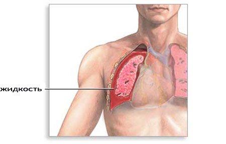 Симптомы и лечение гидроторакса лёгких