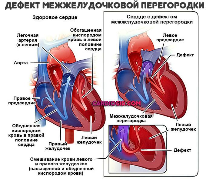 Пороки сердца у детей и взрослых: суть, признаки, лечение, последствия