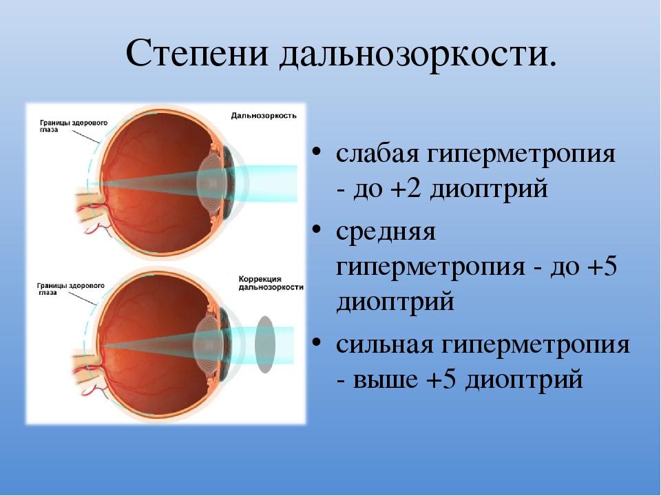 Гиперметропия слабой степени - что это такое? коррекционная технология.
