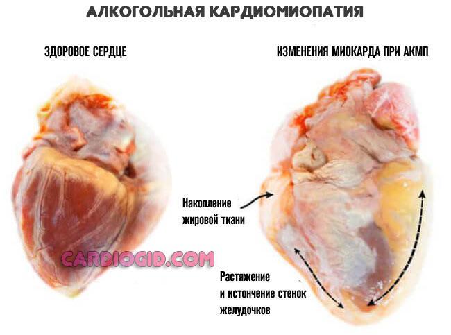 Кардиомиопатия, как причина смерти человека от алкоголя