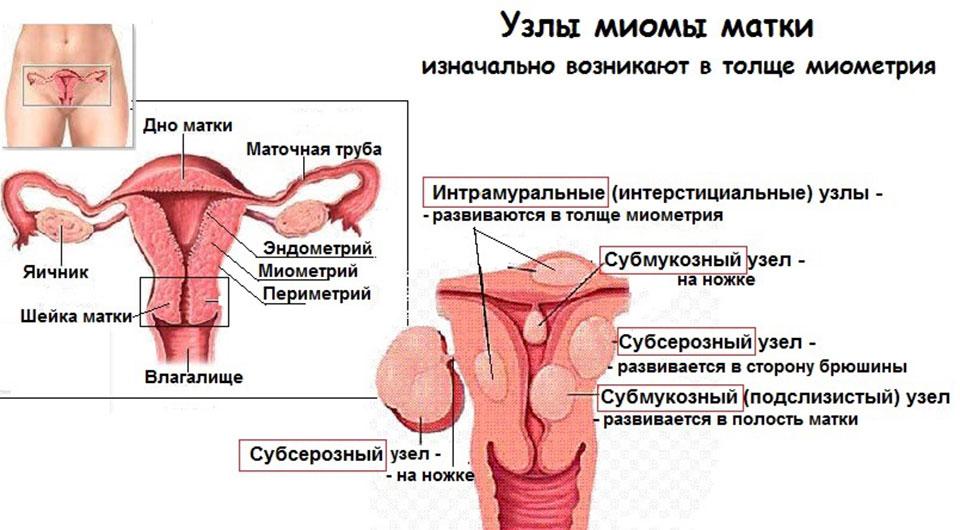 Миома матки - что это за опухоль у женщин, как лечить заболевание