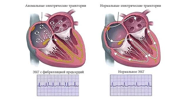 Абляция (рча сердца): что это такое, показания и противопоказания к операции, как ее делают, реабилитация и возможные осложнения
