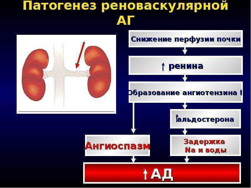 Реноваскулярная гипертензия