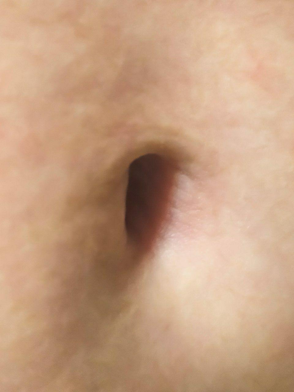Пупочная грыжа: причины, симптомы, лечение