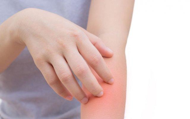 Рожистое воспаление. причины, симптомы, лечение патологии.