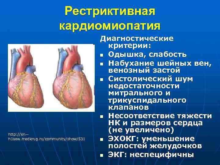 Алкогольная кардиомиопатия: причины, симптомы и лечение