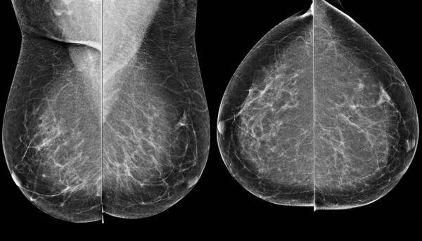 Признаки появления фиброзно-жировой инволюции у женщин — портал о заболеваниях груди
