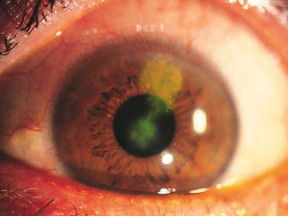 Кератит глаза - что это такое, причины, симптомы и лечение патологии