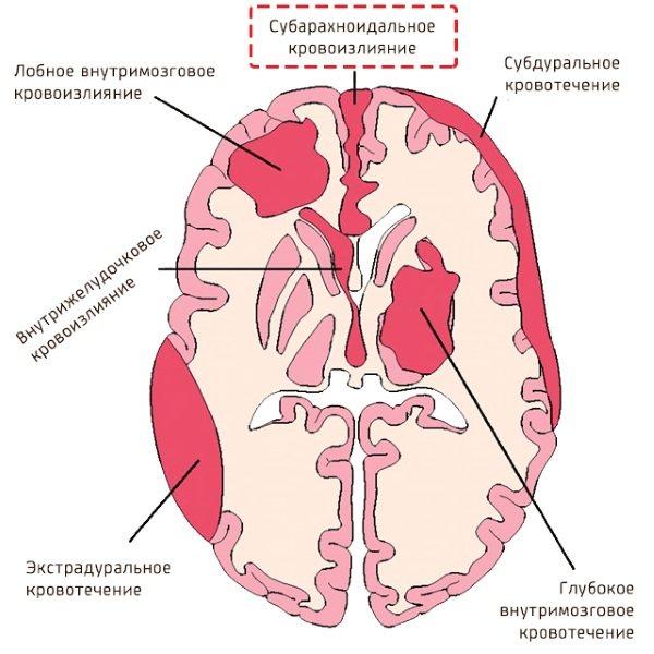 Сак - субарахноидальное кровоизлияние головного мозга