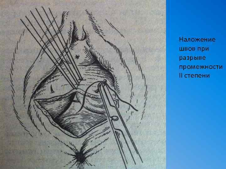 Эпизиотомия: вред или польза. как избежать эпизиотомии - webmedinfo.ru