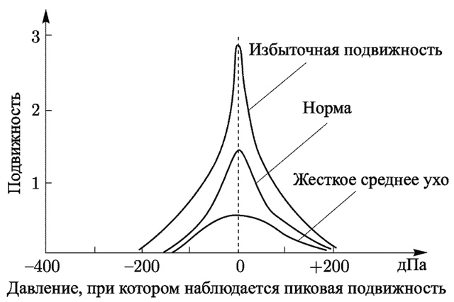 Тимпанометрия — википедия