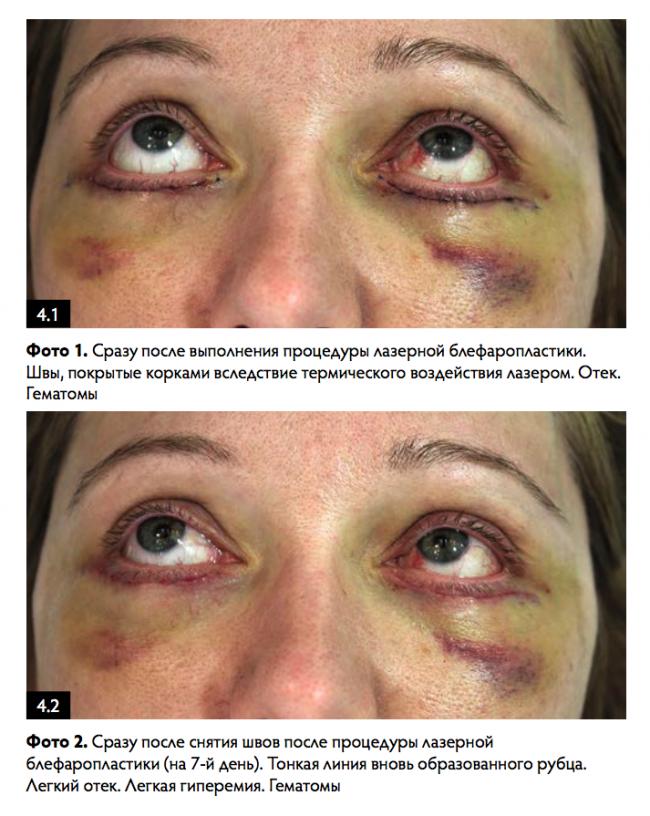 Круговая блефаропластика – показания, подготовка, проведение, результат +фото до и после