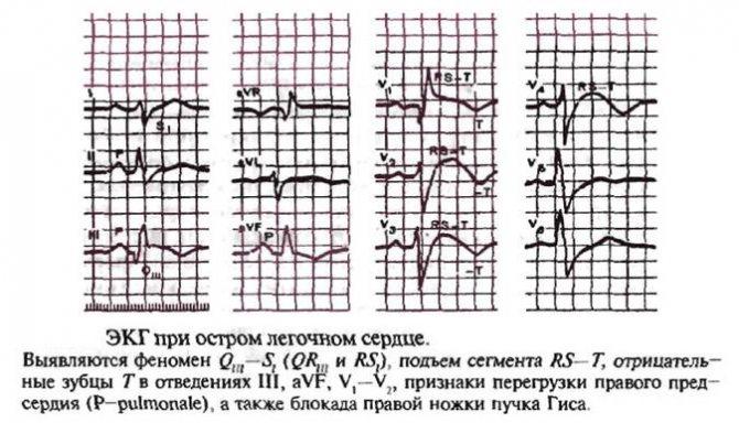 Легочное сердце — что это такое за диагноз?