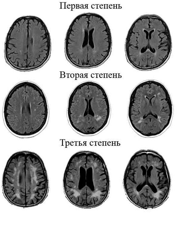 Глиоз головного мозга: что это такое, лечение, прогноз жизни