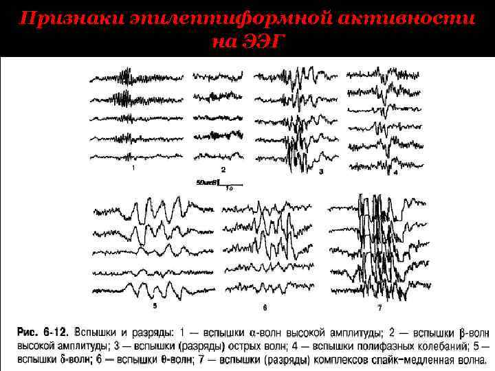 Что показывает ээг головного мозга у детей, расшифровка ээг-видеомониторинга дневного и ночного сна