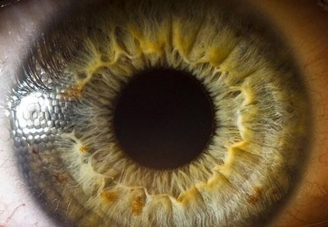 Радужка глаза - ее строение и основные функции