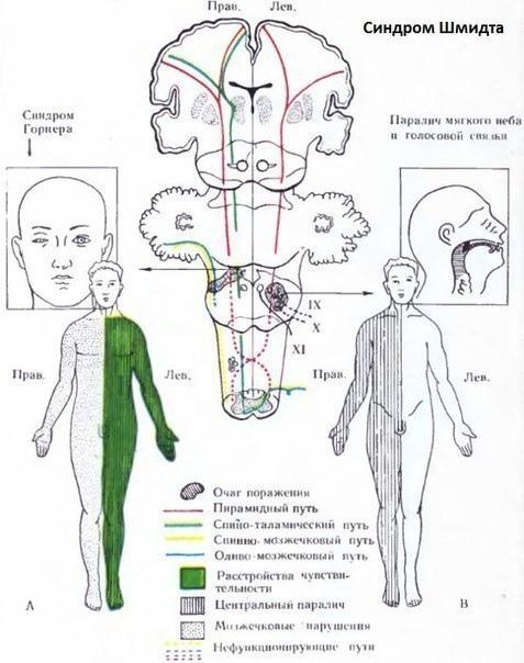 Что такое гемипарез и как его лечат