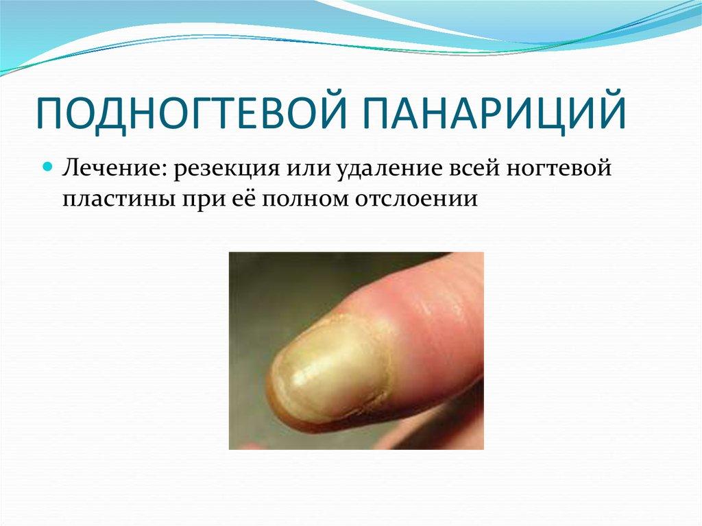 Как лечить панариций на пальце: самые эффективные методы лечения : labuda.blog как лечить панариций на пальце: самые эффективные методы лечения — «лабуда» информационно-развлекательный интернет журнал