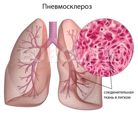 Фиброз легких: лечение с помощью дыхательной гимнастики, питание и народные средства | prof-medstail.ru