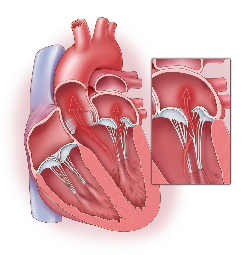 Пролапс митрального клапана 1,2 и 3 степени: лечение и прогноз | мед.консультант - здоровье on-line