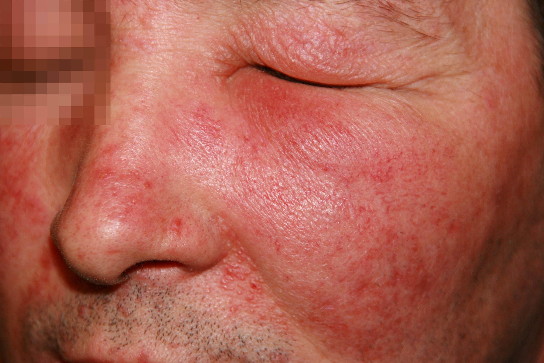 Розацеа (розовые угри). причины, диагностика и лечение патологии