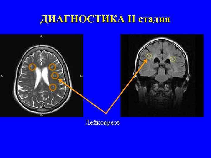 Что из себя представляет лейкоареоз головного мозга