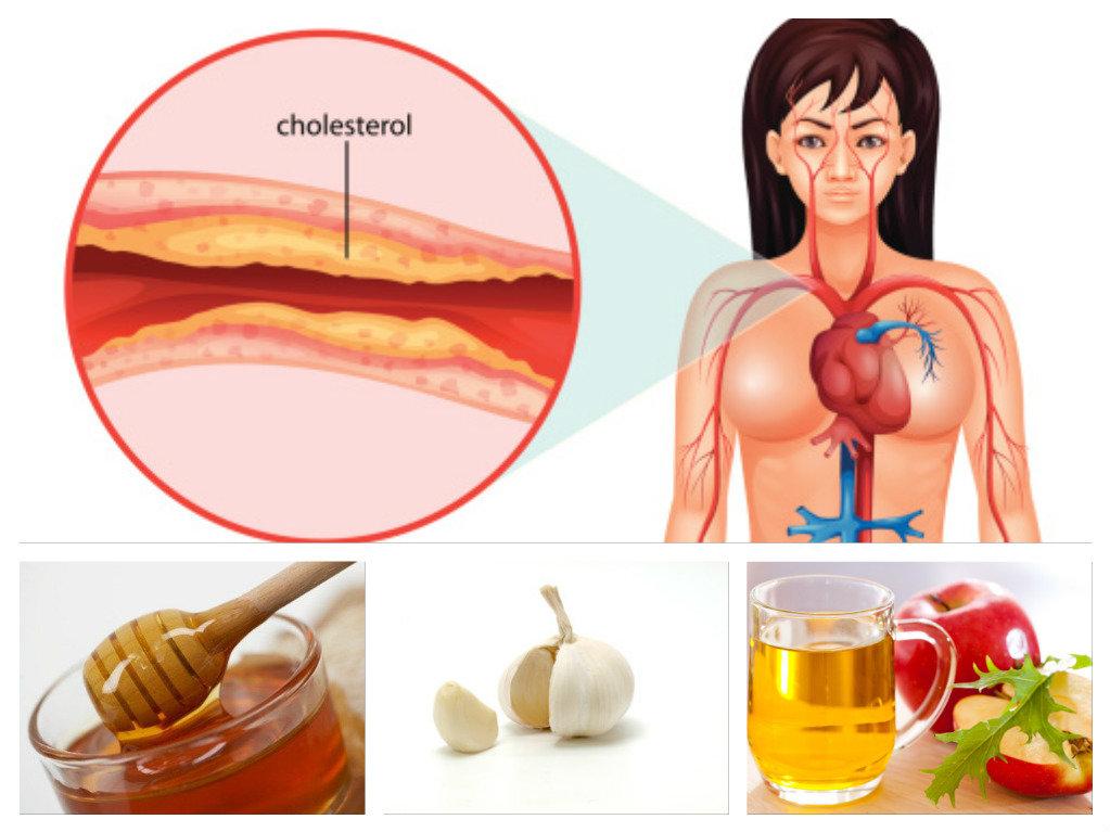Гиперхолестеринемия: симптомы и причины, типы нарушения, методы лечения и последствия