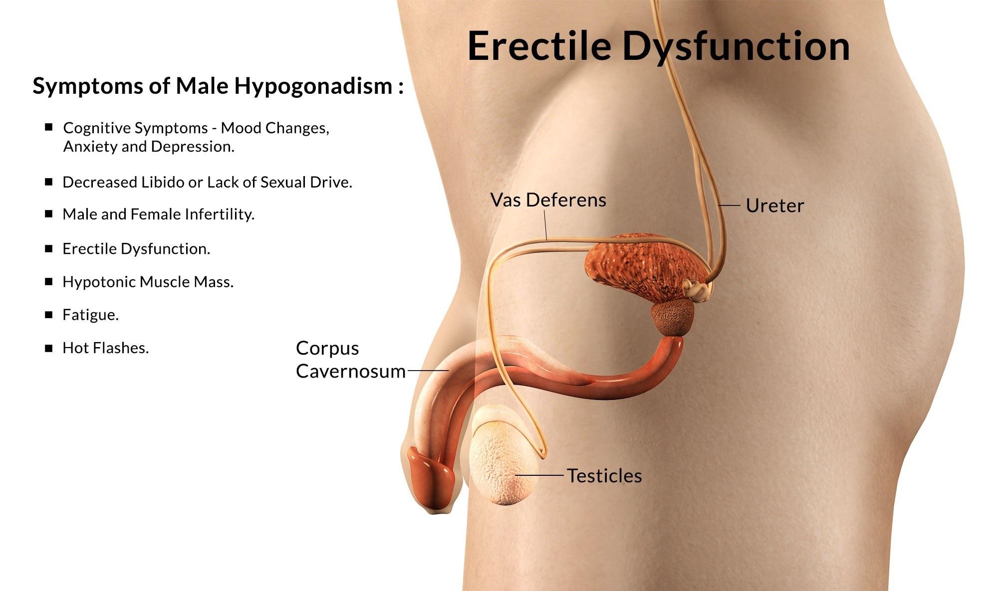 Что такое эректильная дисфункция у мужчин — причины, симптомы и лечение