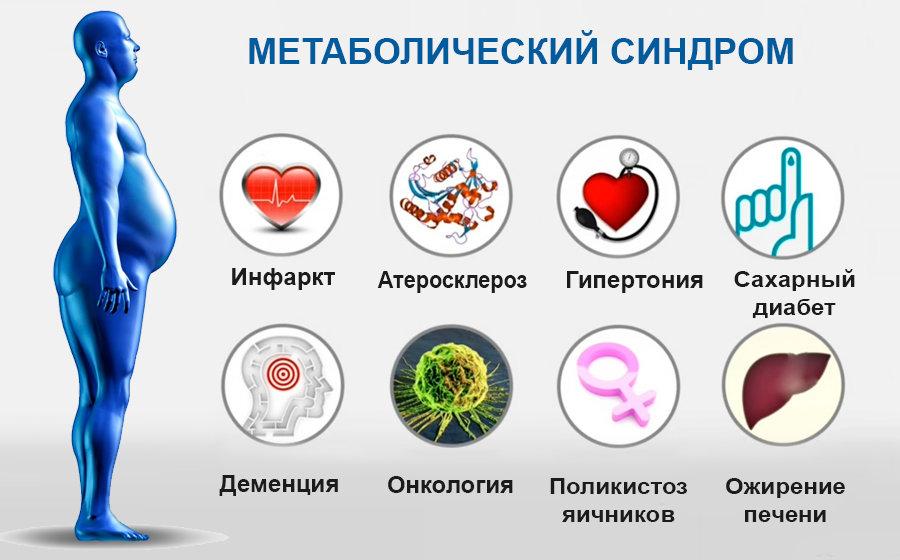 Метаболический симптом: клинические рекомендации и лечение