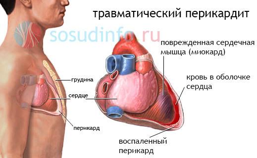 Сердечная тампонада. что такое тампонада сердца, чем опасна, симптомы и лечение