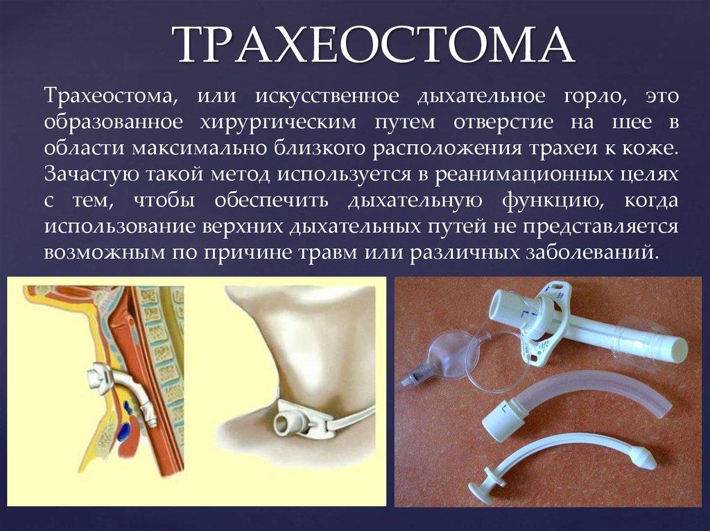 Аспирация: что такое, вред и польза :: syl.ru