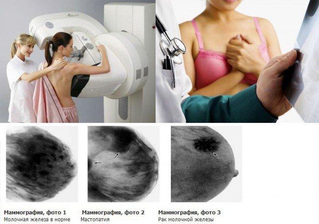 Техника проведения маммографии: как делают обследование молочных желёз