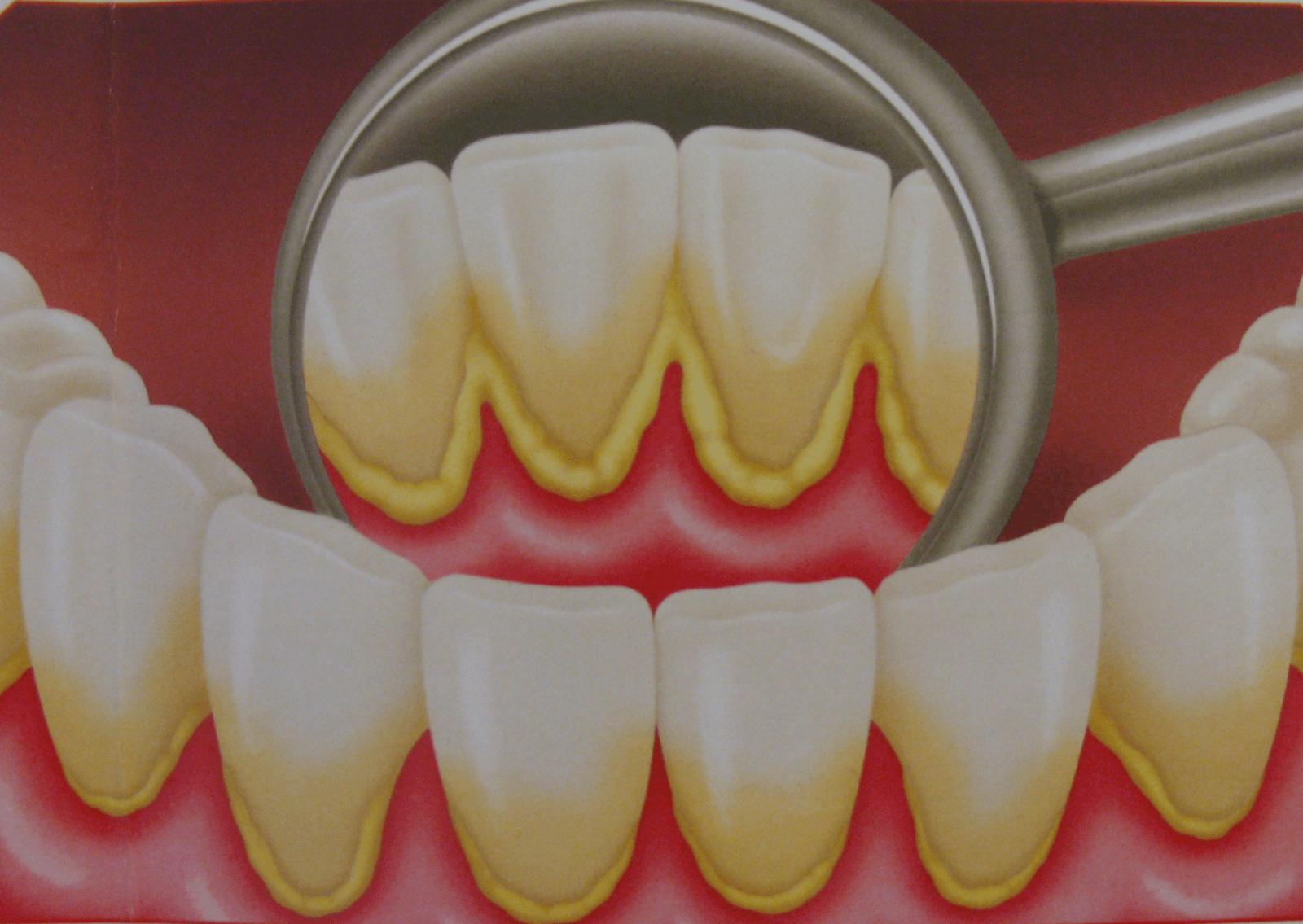 Зубной камень: причины образования и как избавиться от него