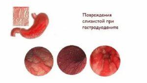 Эритематозная гастропатия: симптомы и лечение