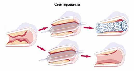 Атеросклероз бца — что это такое и как лечить?