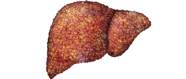 Фиброз печени что это такое как лечить — все о печени