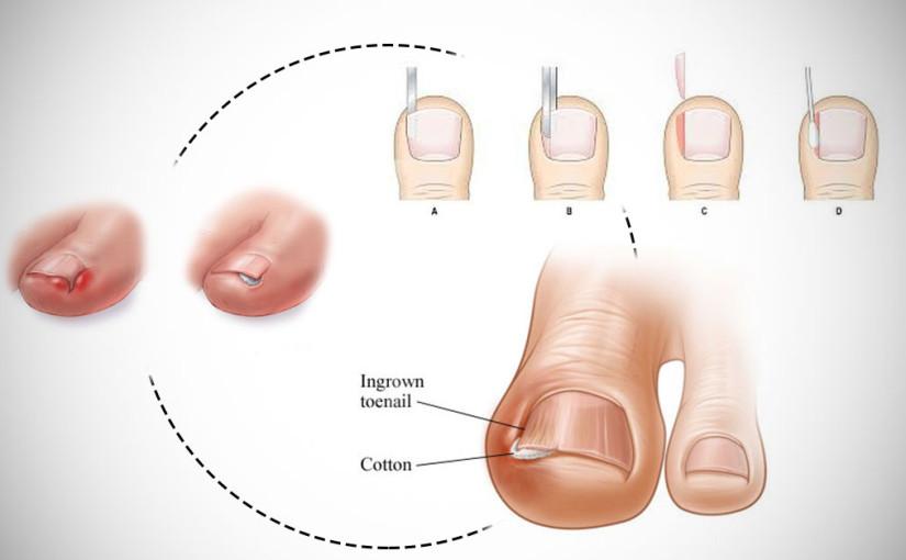 Что делать с врастанием ногтя: симптомы, лечение