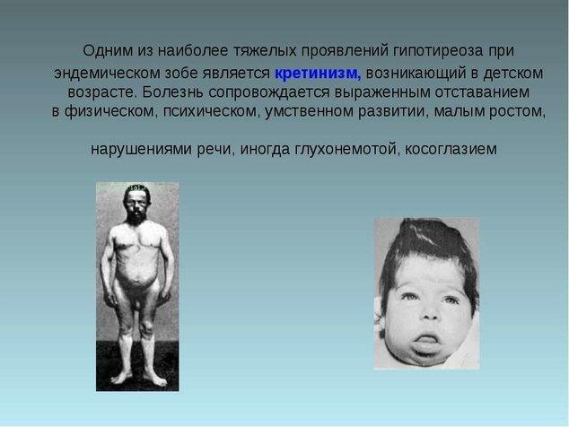 Кретинизм. причины, симптомы и признаки, диагностика, лечение патологии :: polismed.com