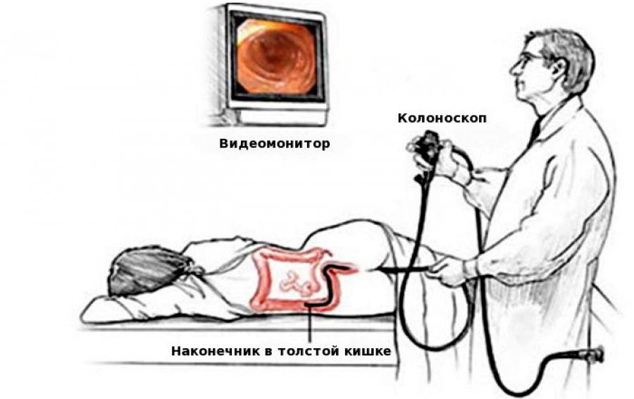 Как делают колоноскопию кишечника под наркозом, и сколько по времени длится процедура?